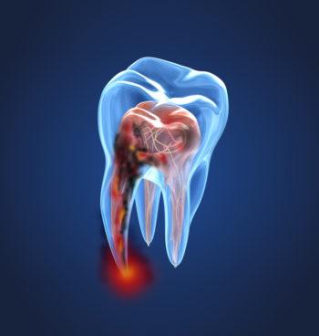 Endodoncia y odontología conservadora