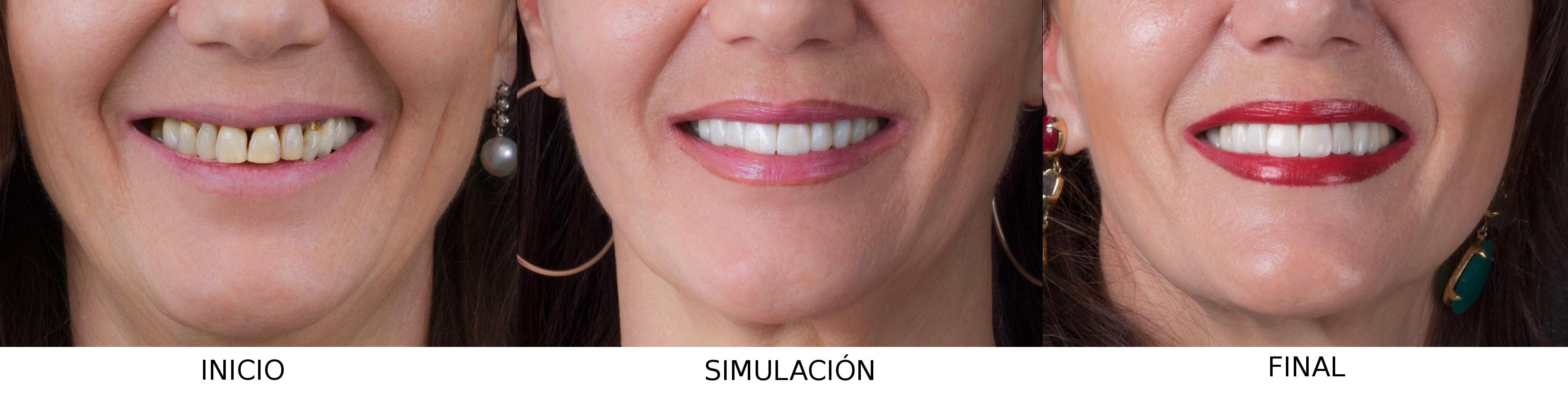 Simulación DSD